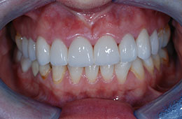 Professional teeth whitening in Houston, TX