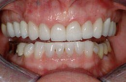 Tooth restorations in Houston