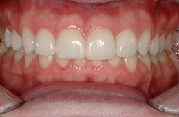 Porcelain veneers in Houston from Dr. O'Keefe