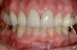 Porcelain veneers from Dr. O'Keefe