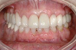 Porcelain veneers in Houston, TX