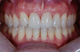 Teeth whitening from Houston cosmetic dentist