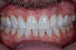 Houston tooth restorations