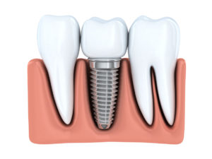 If you're missing teeth, find out if you're a good candidate for dental implants in Memorial Houston.