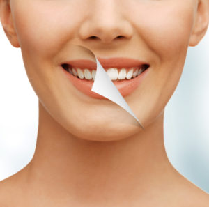 We use professional grade whitening products for teeth whitening in Memorial Houston.