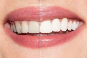 An example of teeth whitening.