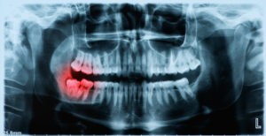 x-ray picture of infected tooth