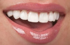 person who has porcelain veneers smiling