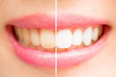 A smile before and after teeth whitening from a dentist